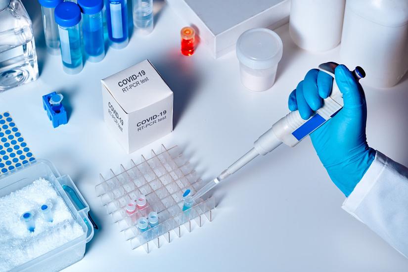 Koronavirusga test qayerda topshirish mumkinligi to'g'risida hududlar bo'yicha ma'lumot berildi