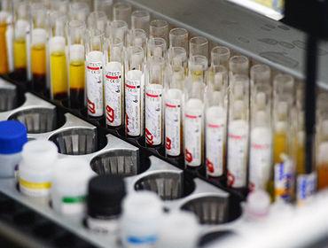 Узбекистан принимает меры для защиты от коронавируса