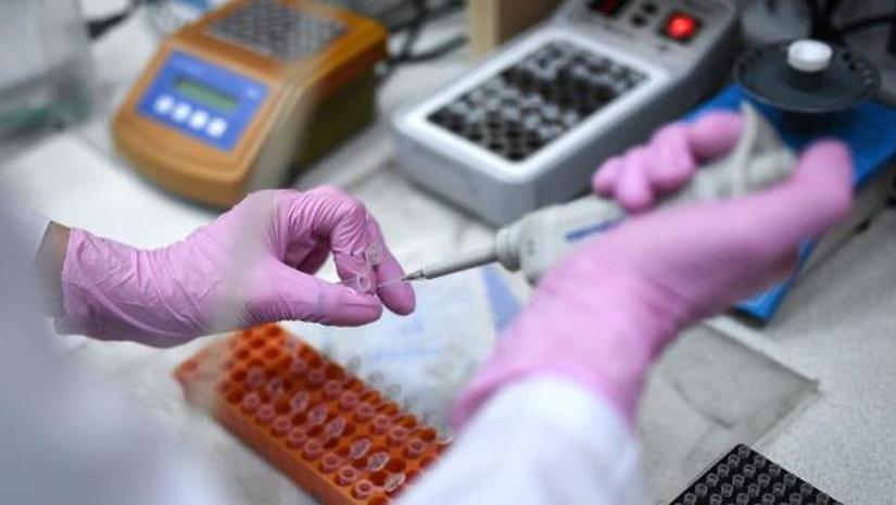Роспотребнадзор передал Узбекистану тест-системы для диагностики нового коронавируса